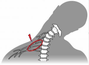lesione traumatica dei plesso brachiale